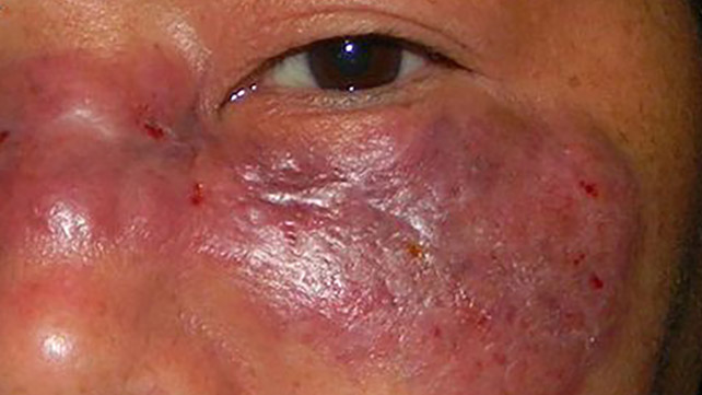 What is mucurmycosis?