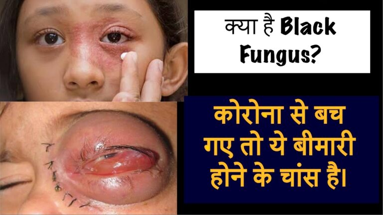 What is Black Fungus kya hai?